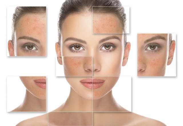 oily-skin pro